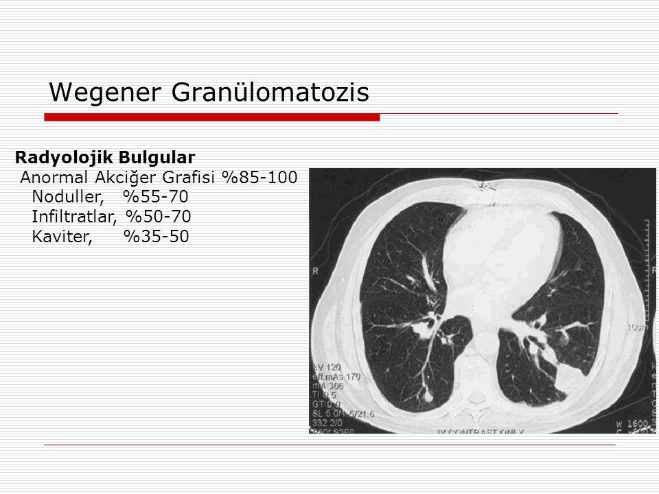 Wegener Granülomatozis