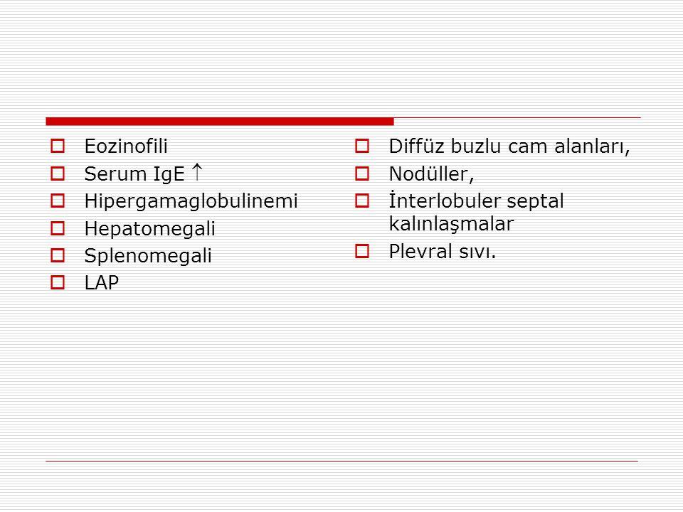 Eozinofili Serum IgE  Hipergamaglobulinemi. Hepatomegali. Splenomegali. LAP. Diffüz buzlu cam alanları,