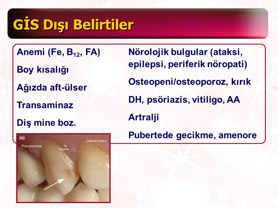 GİS Dışı Belirtiler Anemi (Fe, B12, FA) Boy kısalığı Ağızda aft-ülser