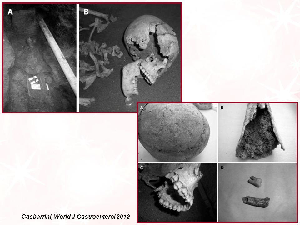 Gasbarrini, World J Gastroenterol 2012