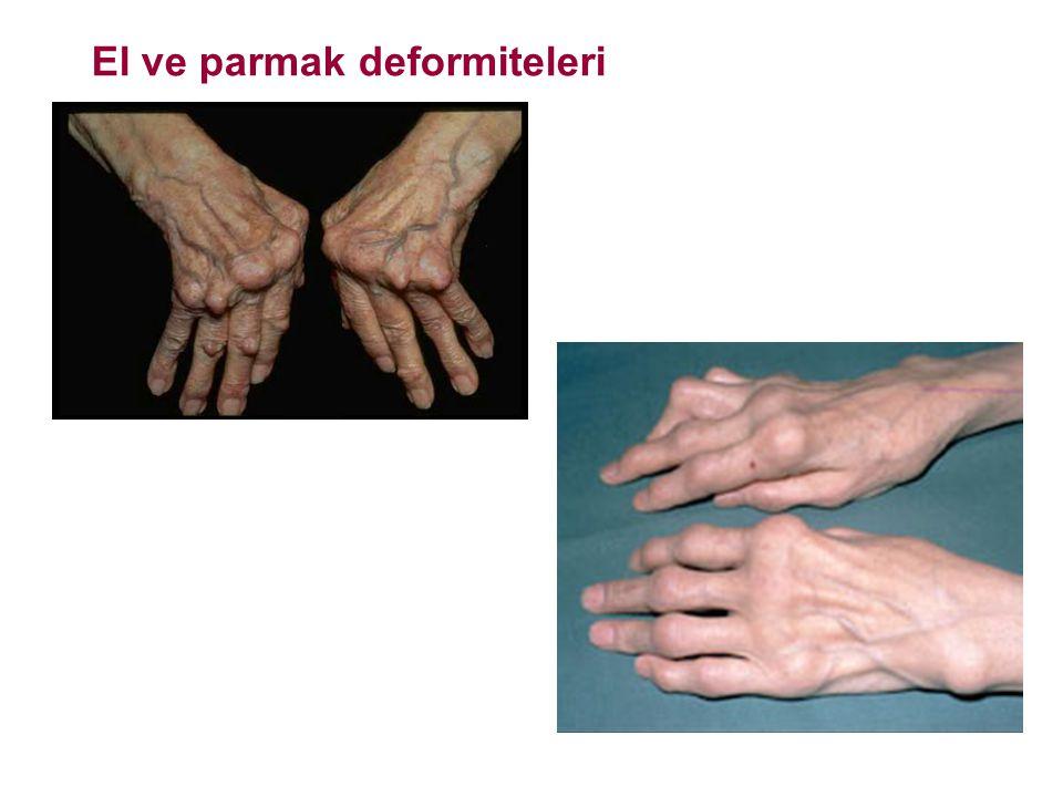 El ve parmak deformiteleri
