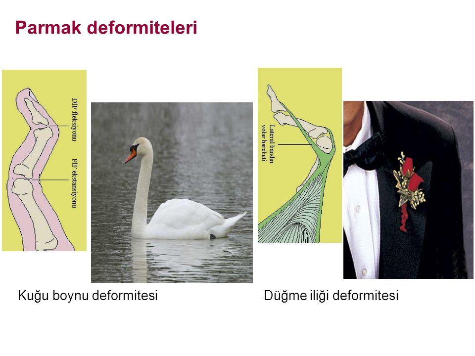 Parmak deformiteleri Kuğu boynu deformitesi Düğme iliği deformitesi