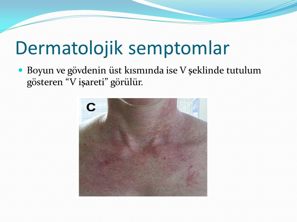 Dermatolojik semptomlar