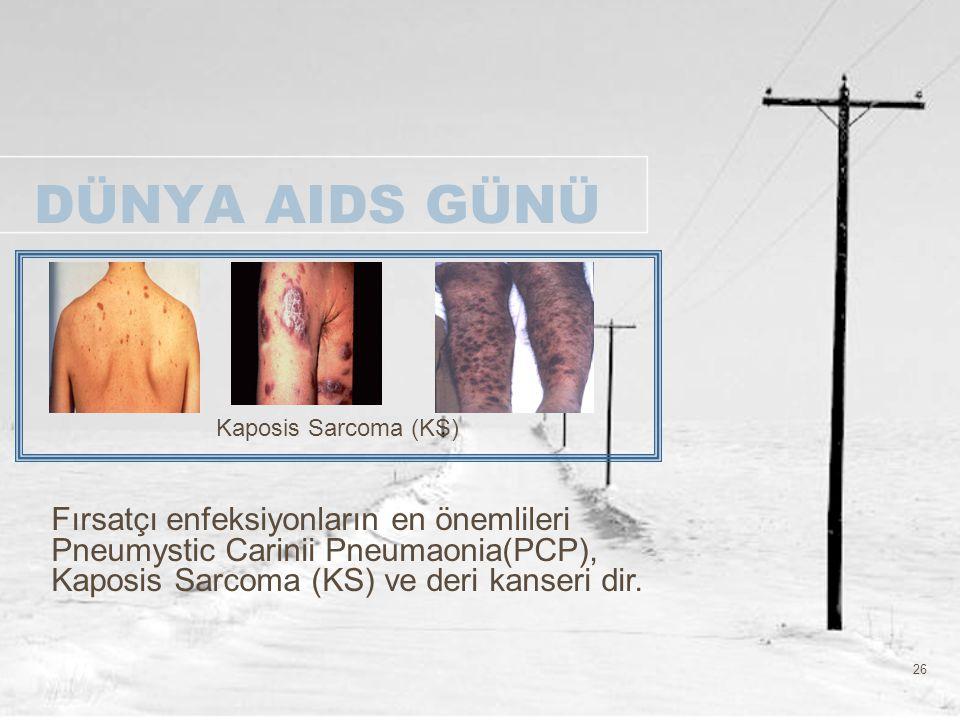 DÜNYA AIDS GÜNÜ Kaposis Sarcoma (KS)