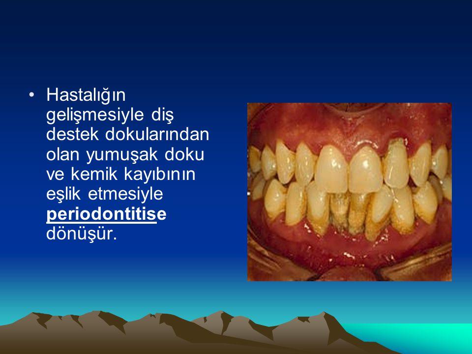Hastalığın gelişmesiyle diş destek dokularından olan yumuşak doku ve kemik kayıbının eşlik etmesiyle periodontitise dönüşür.