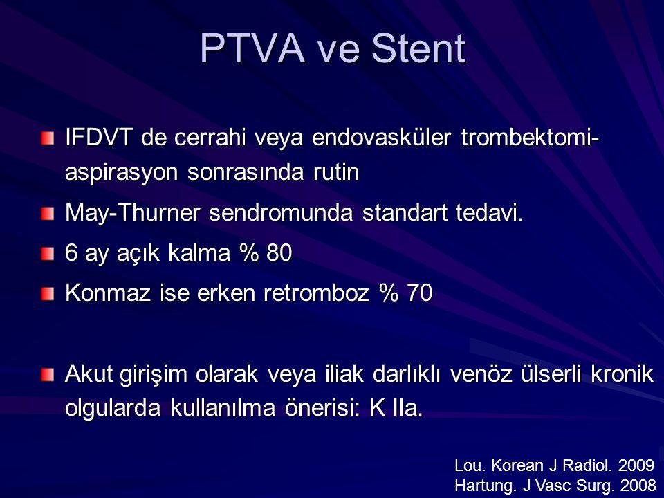 PTVA ve Stent IFDVT de cerrahi veya endovasküler trombektomi-aspirasyon sonrasında rutin. May-Thurner sendromunda standart tedavi.