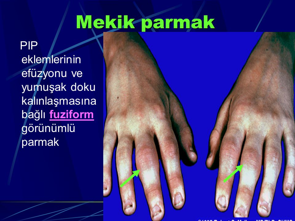 Mekik parmak PIP eklemlerinin efüzyonu ve yumuşak doku kalınlaşmasına bağlı fuziform görünümlü parmak.
