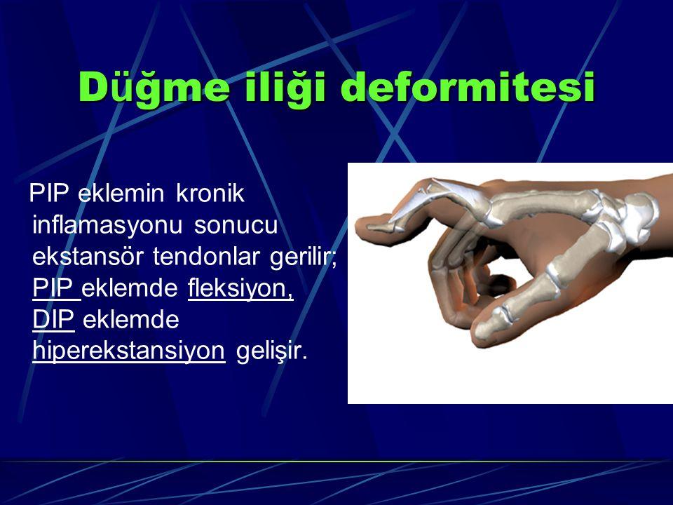 Düğme iliği deformitesi