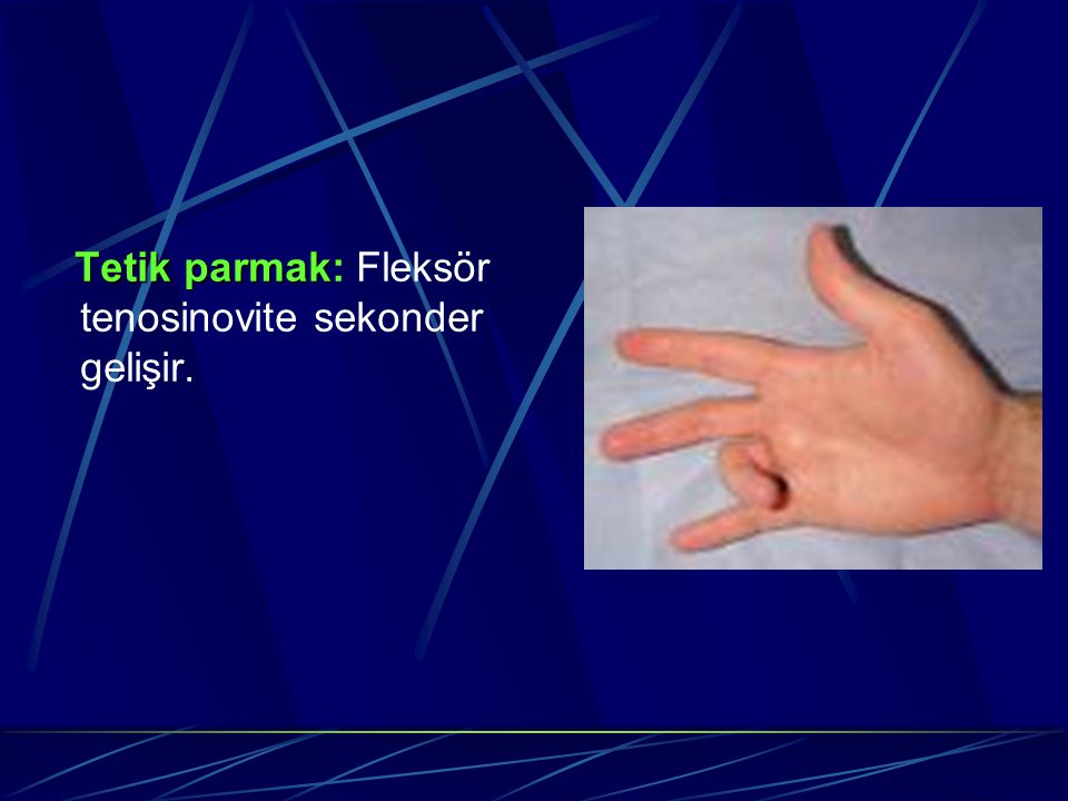 Tetik parmak: Fleksör tenosinovite sekonder gelişir.