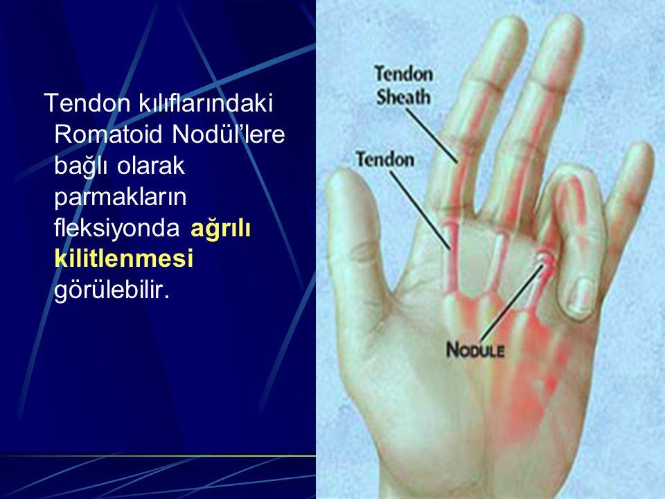 Tendon kılıflarındaki Romatoid Nodül'lere bağlı olarak parmakların fleksiyonda ağrılı kilitlenmesi görülebilir.