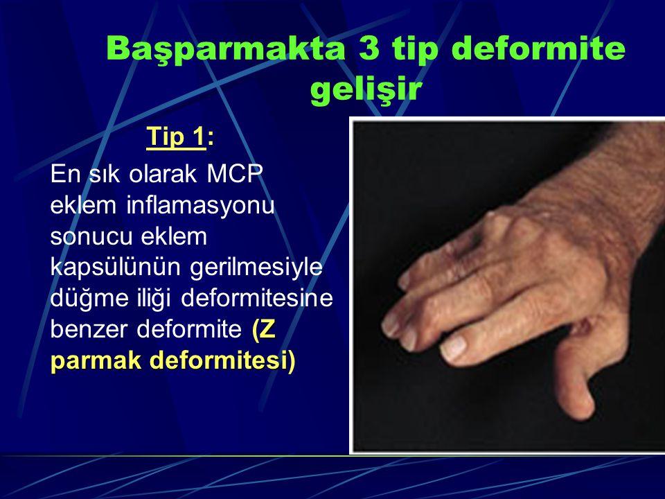 Başparmakta 3 tip deformite gelişir
