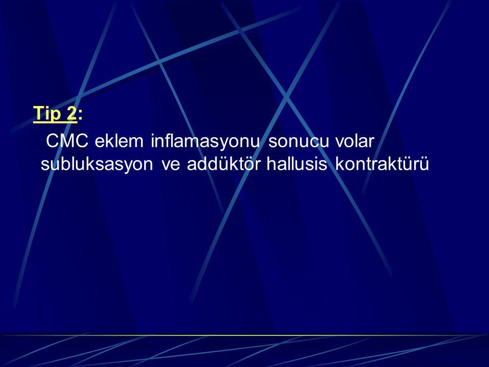 Tip 2: CMC eklem inflamasyonu sonucu volar subluksasyon ve addüktör hallusis kontraktürü