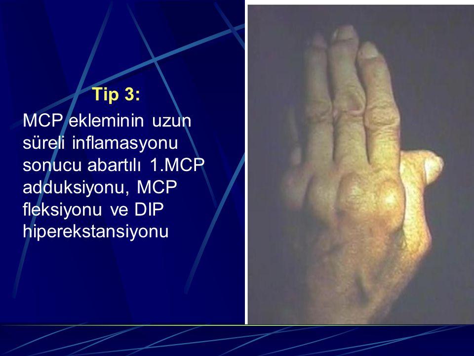 Tip 3: MCP ekleminin uzun süreli inflamasyonu sonucu abartılı 1.MCP adduksiyonu, MCP fleksiyonu ve DIP hiperekstansiyonu.
