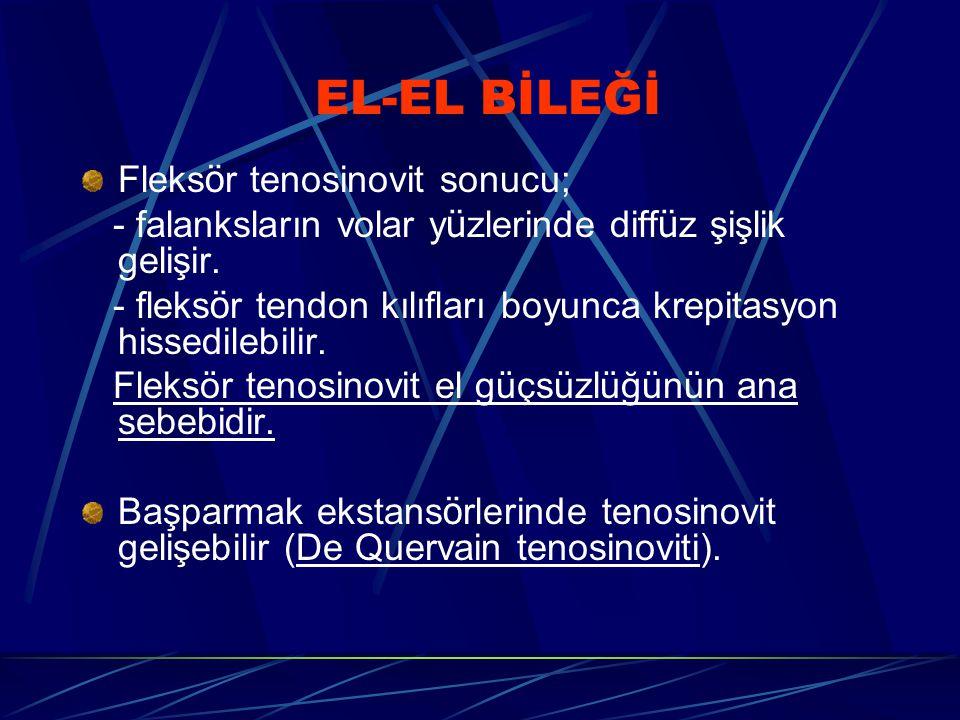 EL-EL BİLEĞİ Fleksör tenosinovit sonucu;