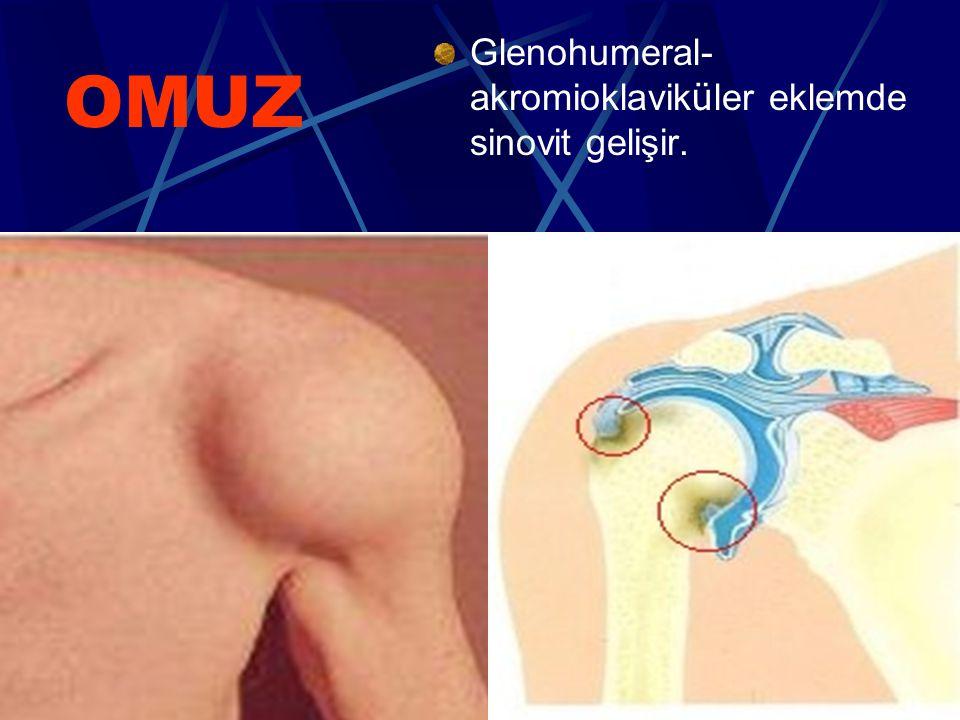 Glenohumeral-akromioklaviküler eklemde sinovit gelişir.