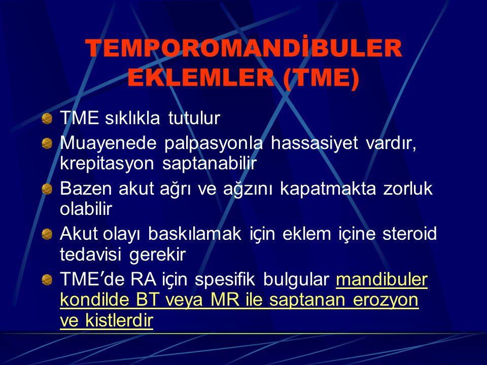 TEMPOROMANDİBULER EKLEMLER (TME)