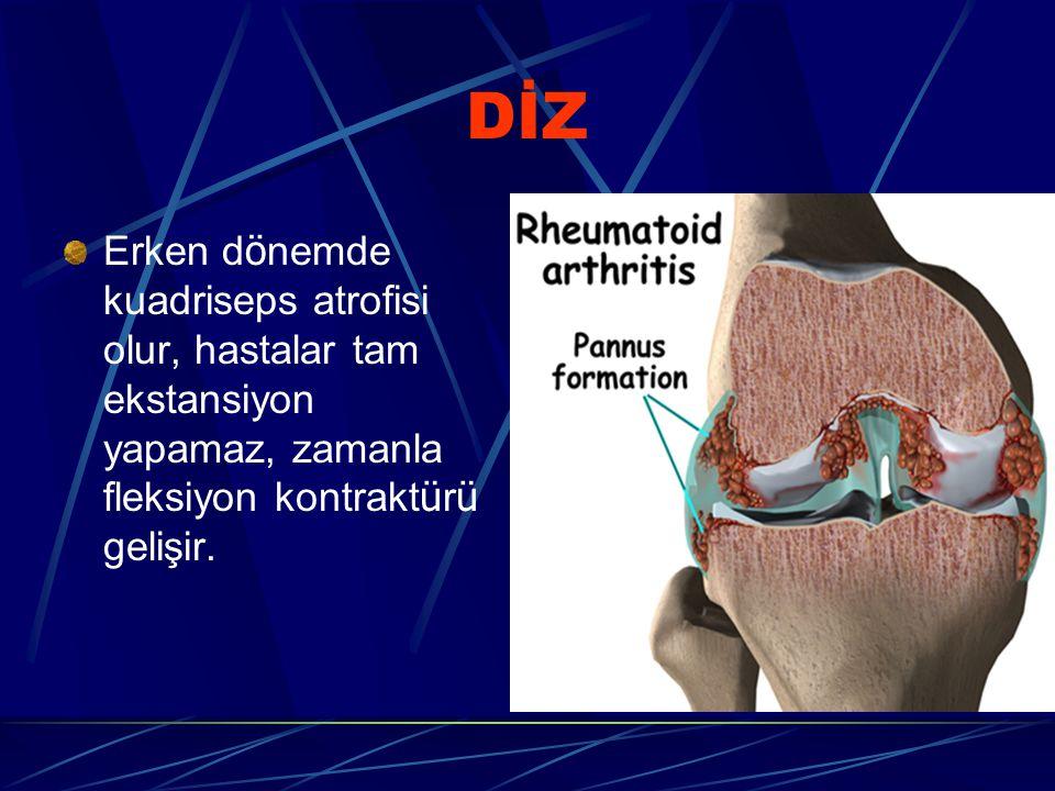 DİZ Erken dönemde kuadriseps atrofisi olur, hastalar tam ekstansiyon yapamaz, zamanla fleksiyon kontraktürü gelişir.