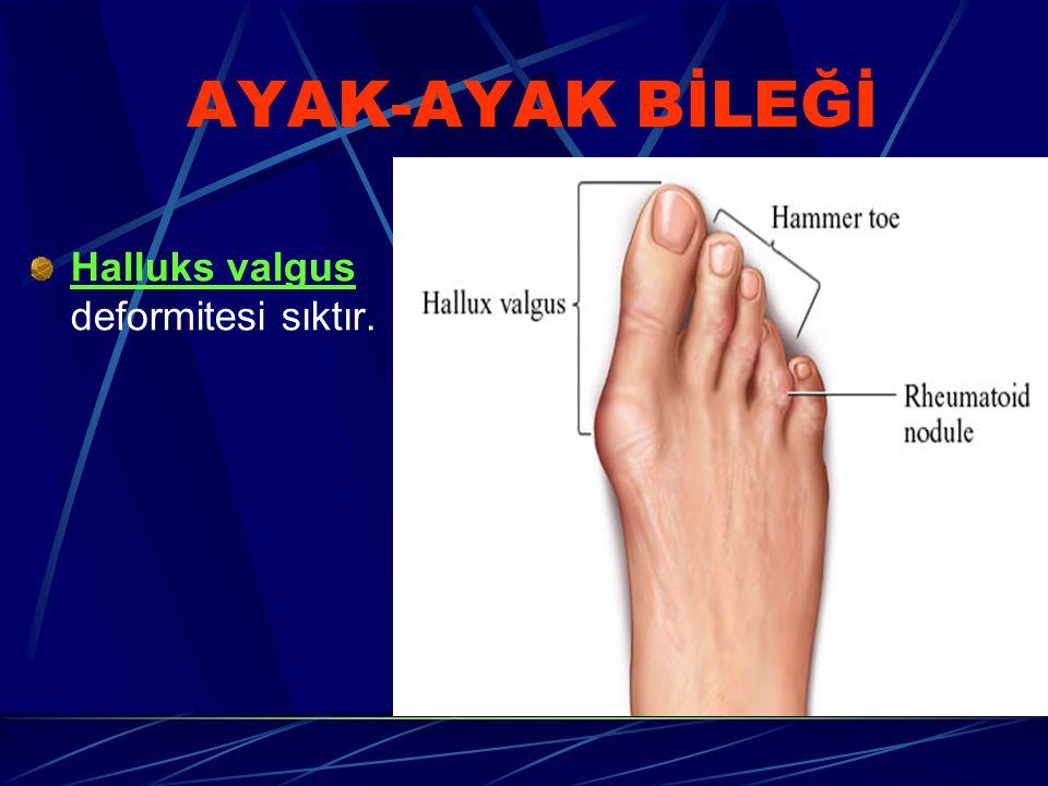 AYAK-AYAK BİLEĞİ Halluks valgus deformitesi sıktır.