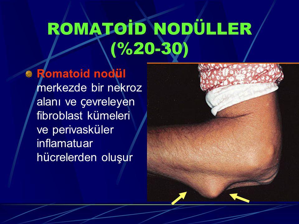 ROMATOİD NODÜLLER (%20-30)