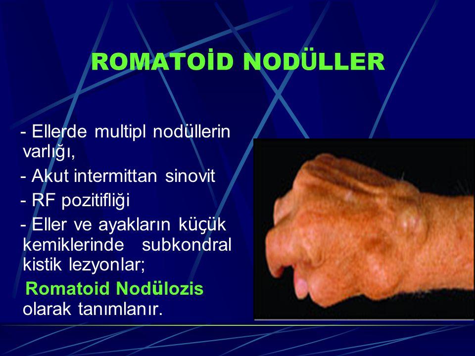 ROMATOİD NODÜLLER - Ellerde multipl nodüllerin varlığı,