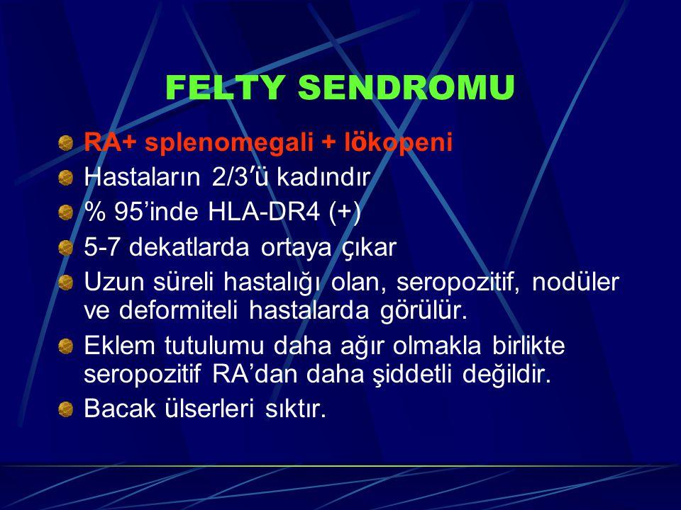 FELTY SENDROMU RA+ splenomegali + lökopeni Hastaların 2/3'ü kadındır