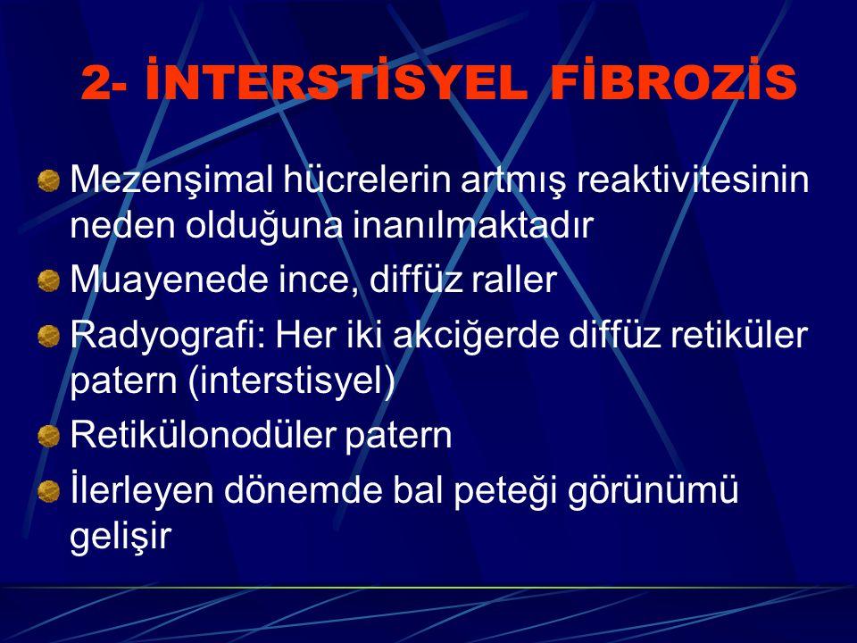 2- İNTERSTİSYEL FİBROZİS