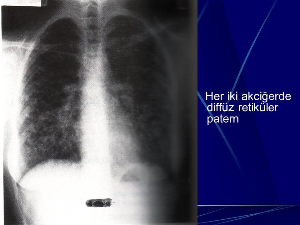 Her iki akciğerde diffüz retiküler patern
