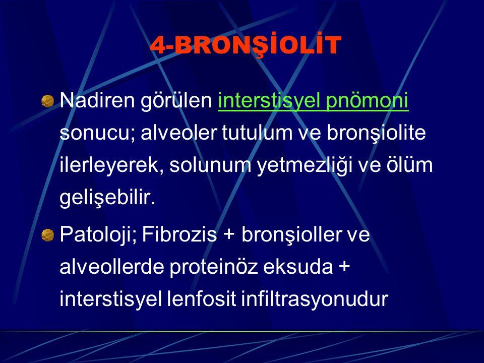 4-BRONŞİOLİT Nadiren görülen interstisyel pnömoni sonucu; alveoler tutulum ve bronşiolite ilerleyerek, solunum yetmezliği ve ölüm gelişebilir.