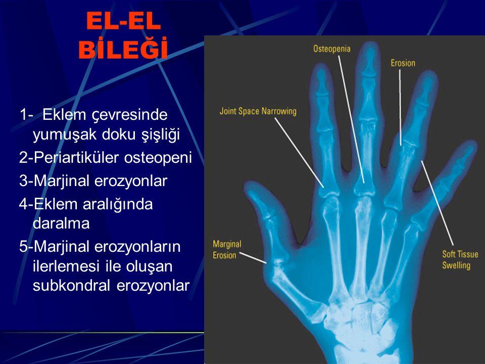 EL-EL BİLEĞİ 1- Eklem çevresinde yumuşak doku şişliği
