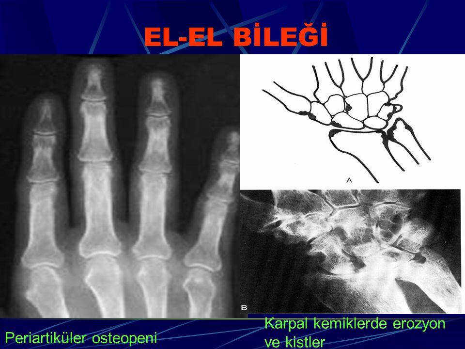EL-EL BİLEĞİ Karpal kemiklerde erozyon ve kistler
