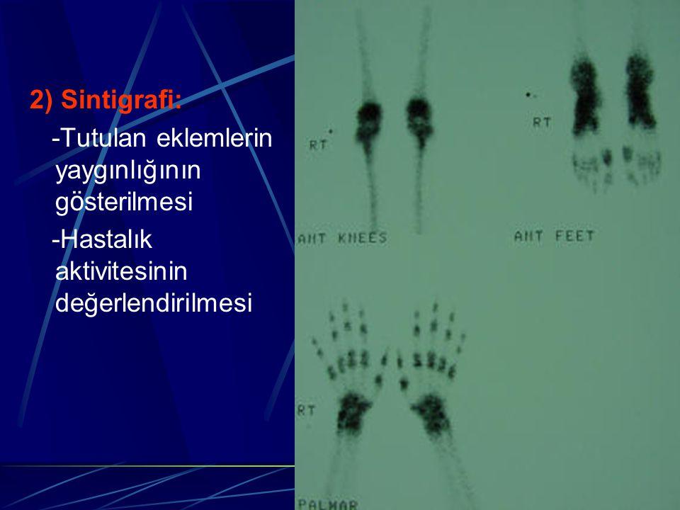 2) Sintigrafi: -Tutulan eklemlerin yaygınlığının gösterilmesi.