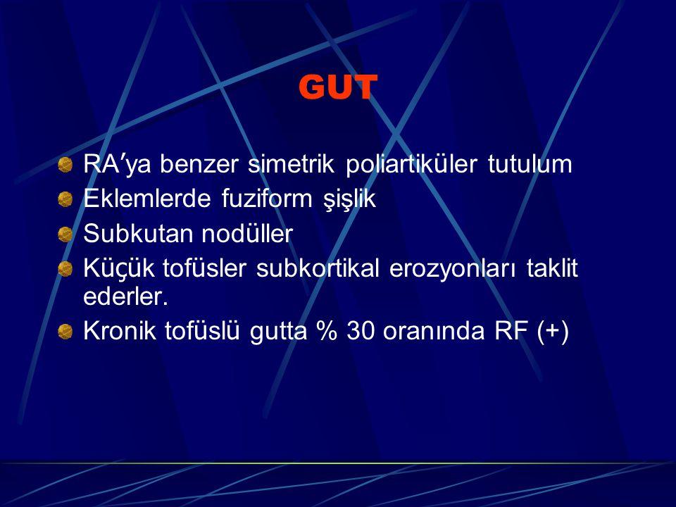 GUT RA'ya benzer simetrik poliartiküler tutulum