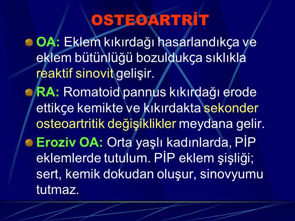 OSTEOARTRİT OA: Eklem kıkırdağı hasarlandıkça ve eklem bütünlüğü bozuldukça sıklıkla reaktif sinovit gelişir.