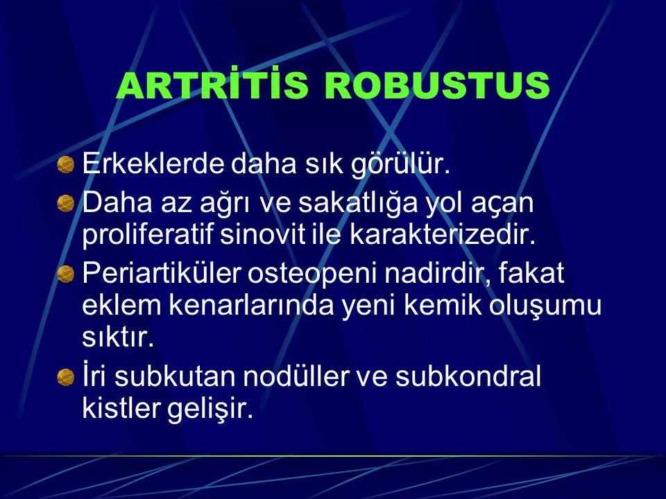 ARTRİTİS ROBUSTUS Erkeklerde daha sık görülür.
