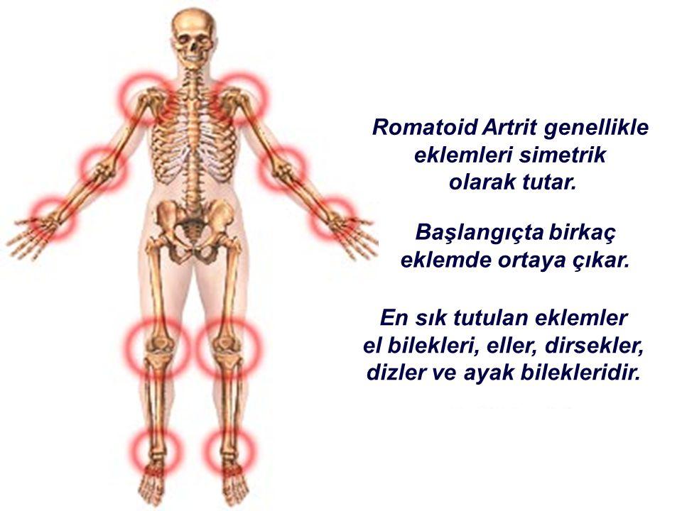 Romatoid Artrit genellikle eklemleri simetrik olarak tutar.