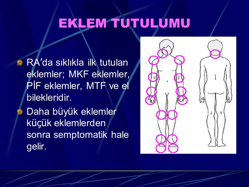 EKLEM TUTULUMU RA'da sıklıkla ilk tutulan eklemler; MKF eklemler, PİF eklemler, MTF ve el bilekleridir.