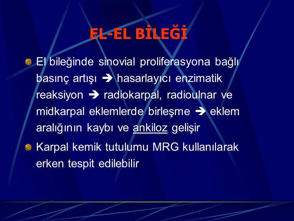 EL-EL BİLEĞİ