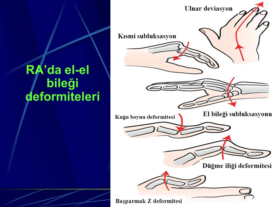 RA'da el-el bileği deformiteleri