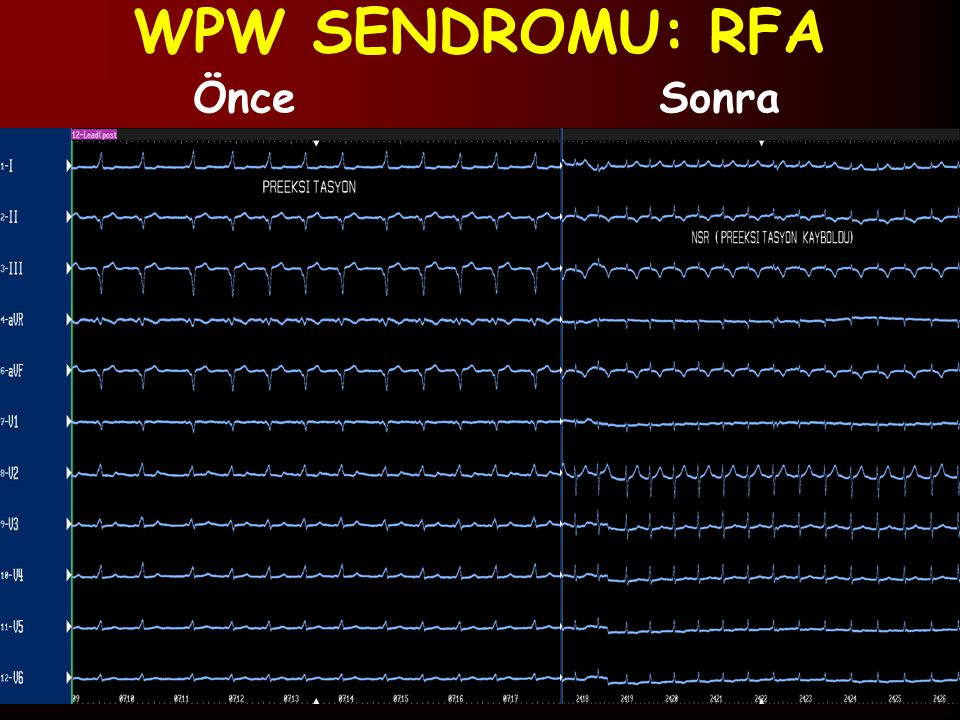 WPW SENDROMU: RFA Önce Sonra