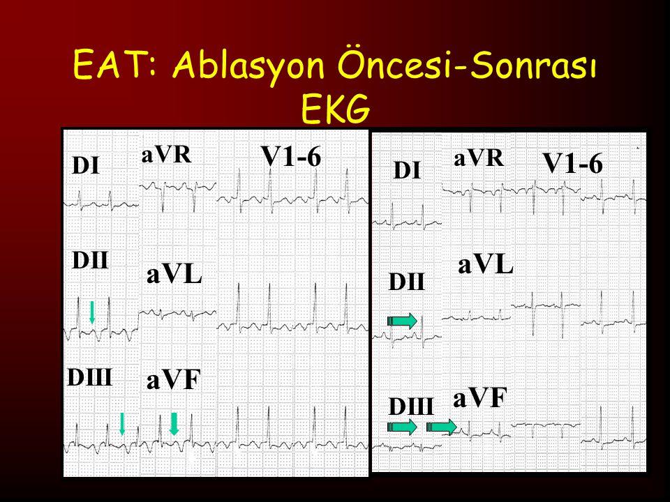 EAT: Ablasyon Öncesi-Sonrası EKG