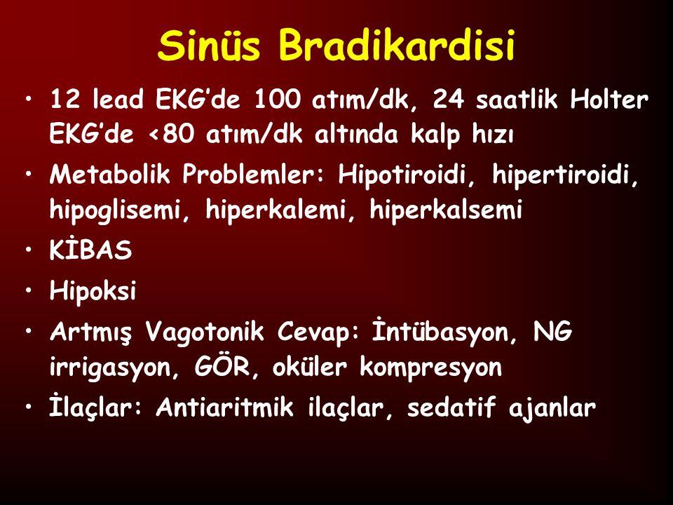 Sinüs Bradikardisi 12 lead EKG'de 100 atım/dk, 24 saatlik Holter EKG'de <80 atım/dk altında kalp hızı.