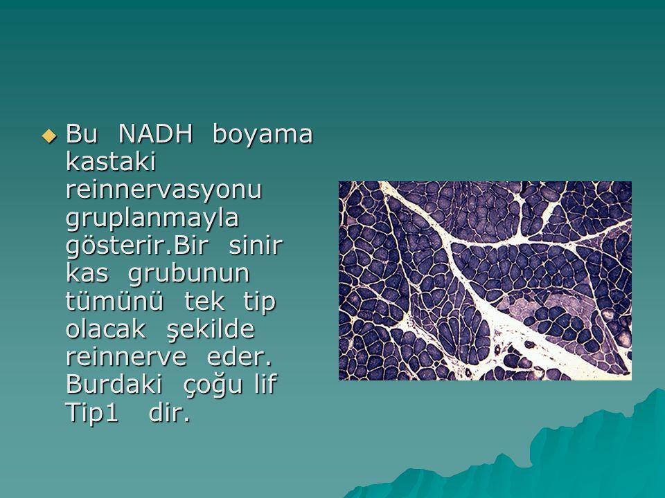Bu NADH boyama kastaki reinnervasyonu gruplanmayla gösterir