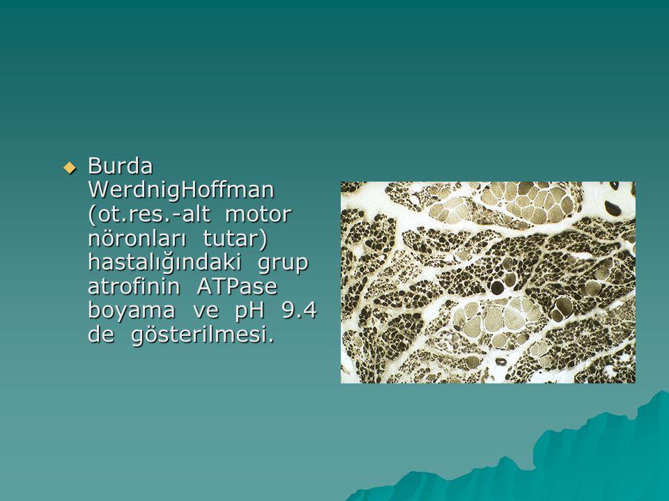 Burda WerdnigHoffman (ot. res