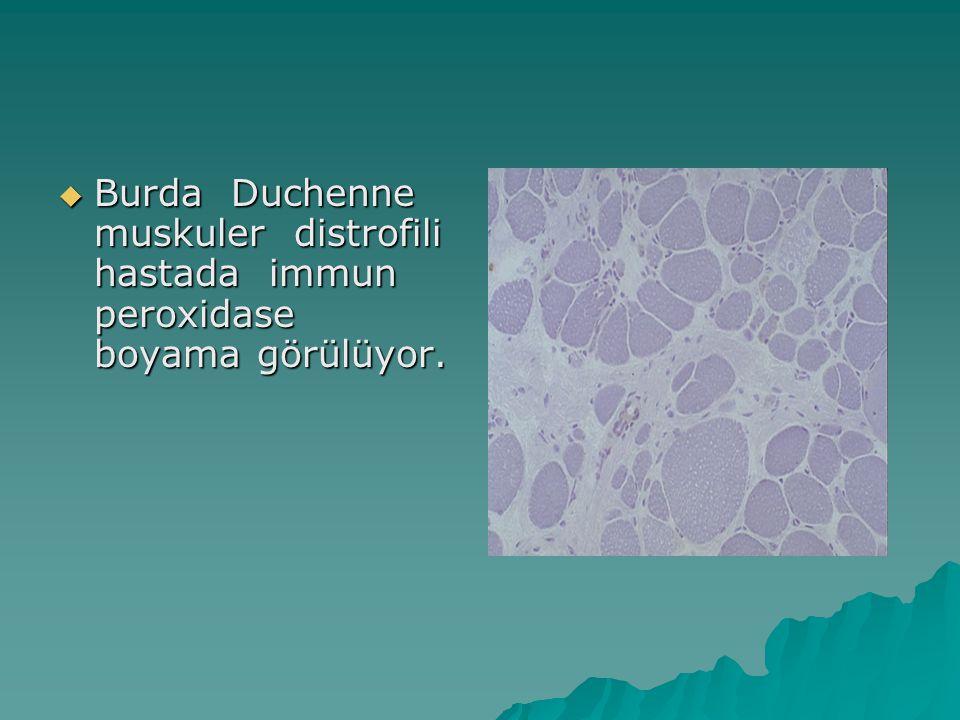 Burda Duchenne muskuler distrofili hastada immun peroxidase boyama görülüyor.