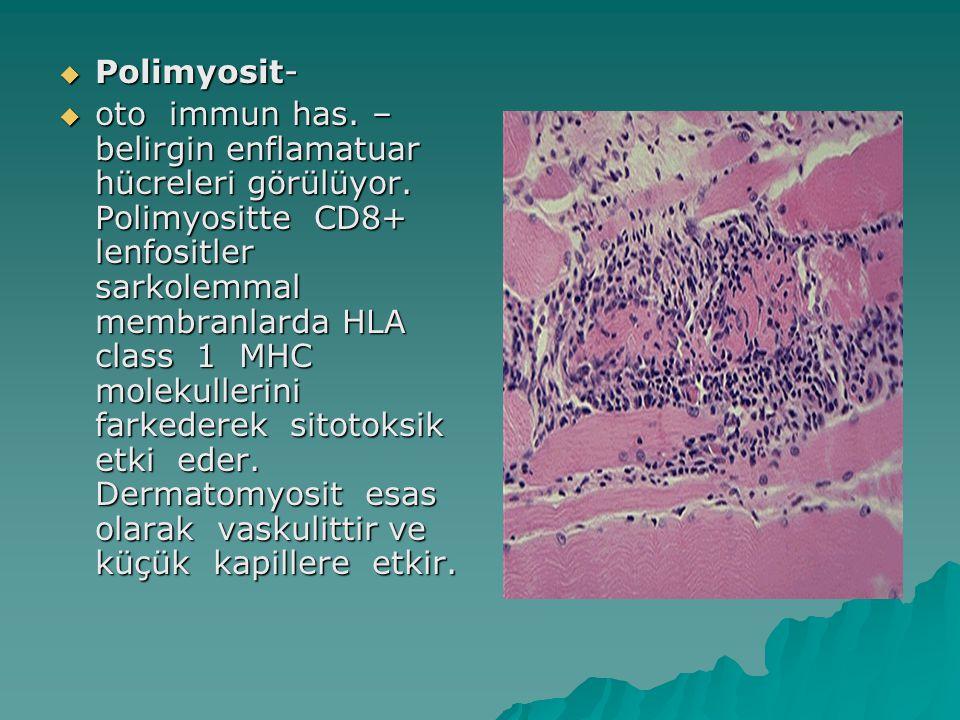 Polimyosit-