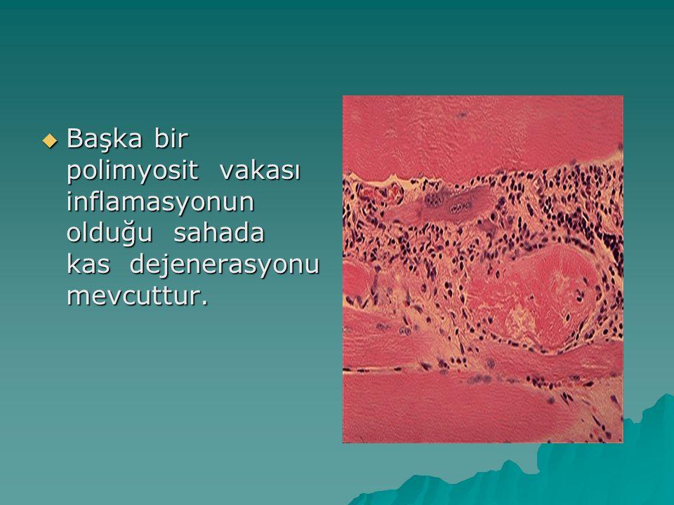 Başka bir polimyosit vakası inflamasyonun olduğu sahada kas dejenerasyonu mevcuttur.