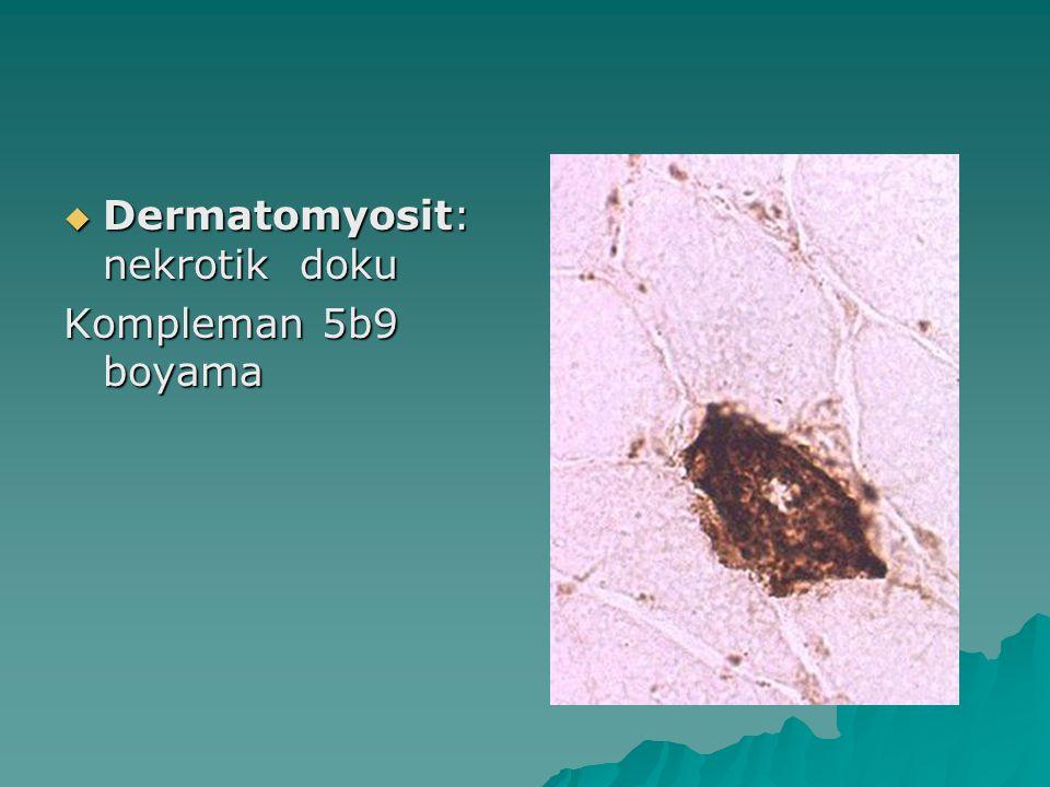 Dermatomyosit: nekrotik doku