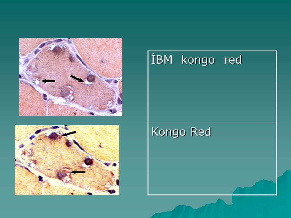 İBM kongo red Kongo Red