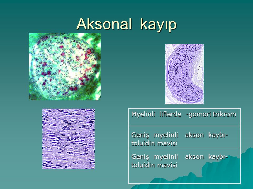 Aksonal kayıp Myelinli liflerde -gomori trikrom