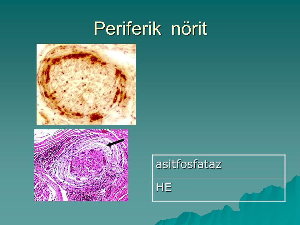 Periferik nörit asitfosfataz HE